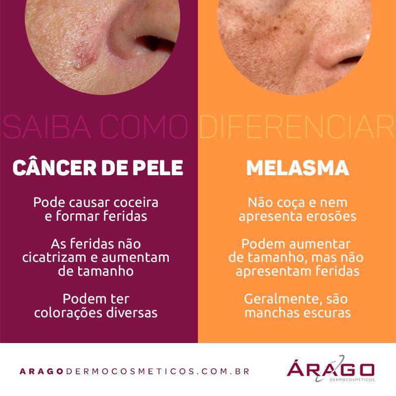 melasma e câncer de pele, árago