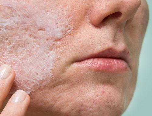 Aprenda a se prevenir das cicatrizes de acne