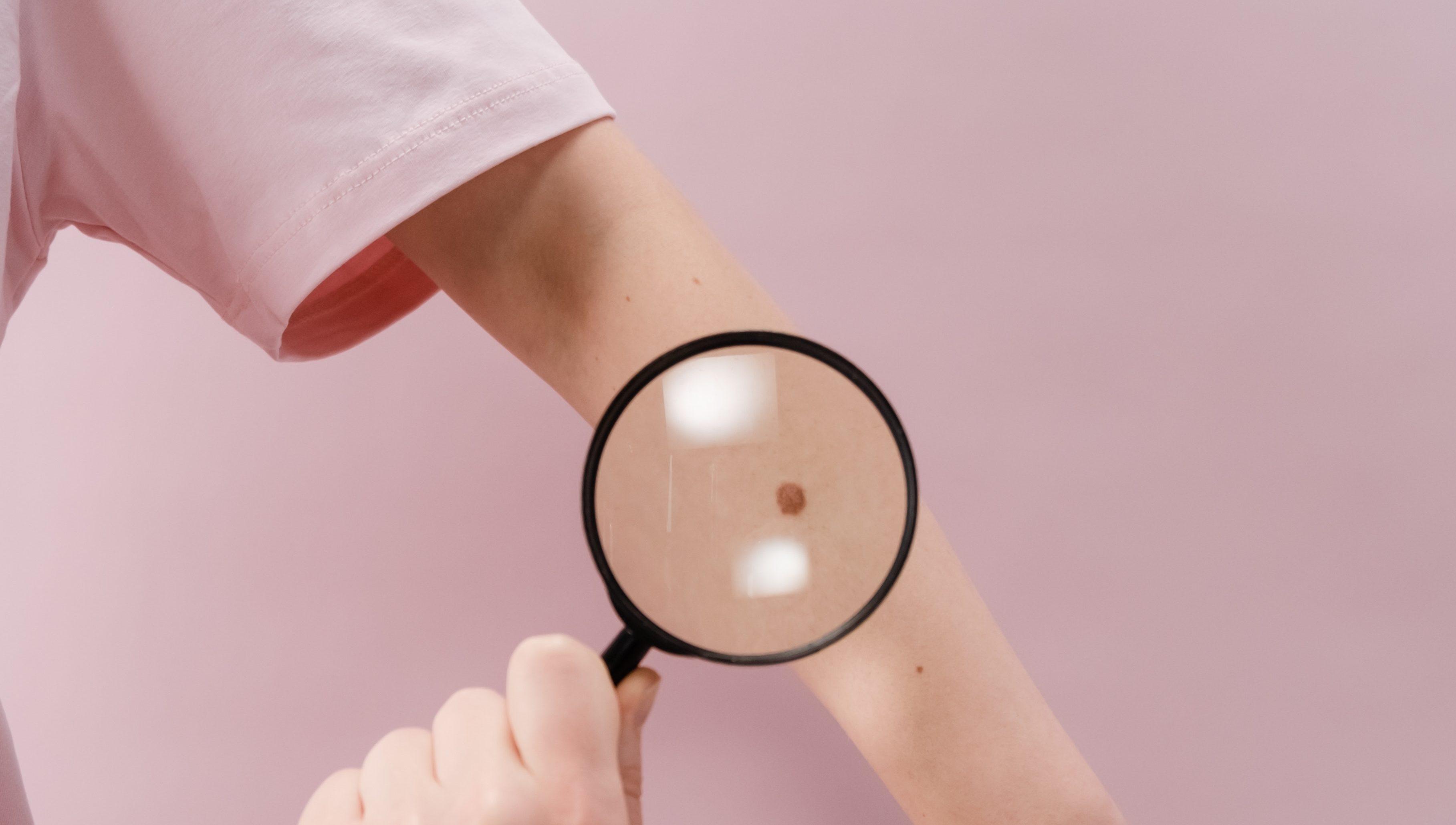 Manchas na pele: como identificar e tratar o problema?