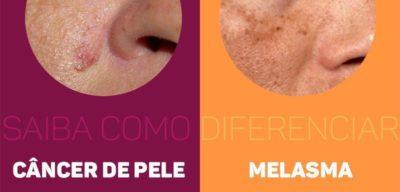 melasma tratamento, câncer de pele, árago